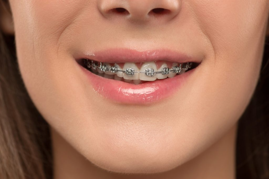 Beautiful young woman with teeth braces